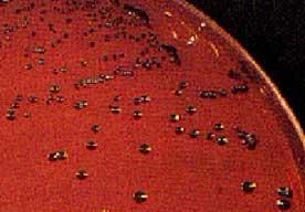 clostridium tetani milieu de vie