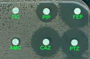 test de catalase et oxydase pdf