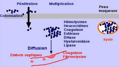 toxine staphylocoque