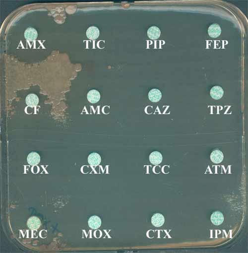 Antibiogramme habituel par diffusion (pigmentation saumonée des
