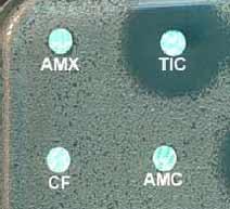 Divers phénotypes de résistance acquise par mécanisme enzymatique